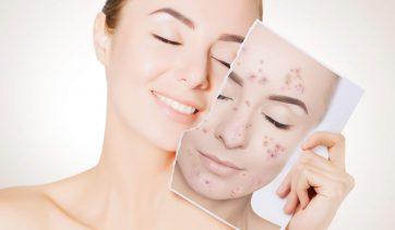 Tratamento natural para Acne